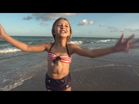 8 - Year-Old With Beating Heart Outside Chest Defies The Odds