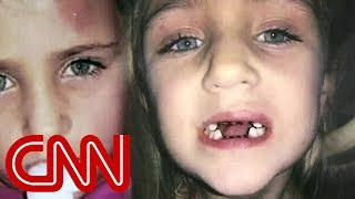 Dentist accused of abusing children, unwanted procedures(A Florida dentist is accused of harming children while collecting millions of dollars for unwanted procedures. CNN's Victor Blackwell is Keeping Them Honest., 2015-05-21T01:11:51.000Z)