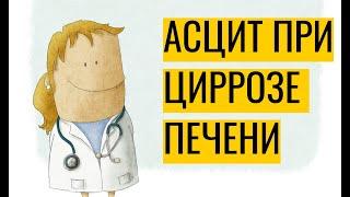 Асцит при циррозе печени: почему возникает и как лечить