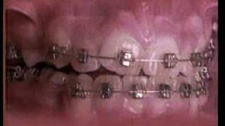 Straight teeth in under 60 seconds!