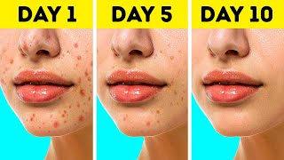AMAZING BEAUTY HACKS EVERY GIRL NEEDS || 5-Minute Recipes For Your Beauty