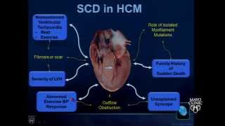 The Cardiomyopathies by Steve R. Ommen, M.D.