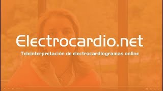 Electrocardionet