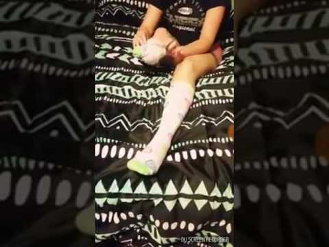 Bk amputee puts her sock on her lovely stump!