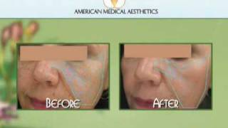 Non-surgical Multiple Laser Face Lift with Surgery Results