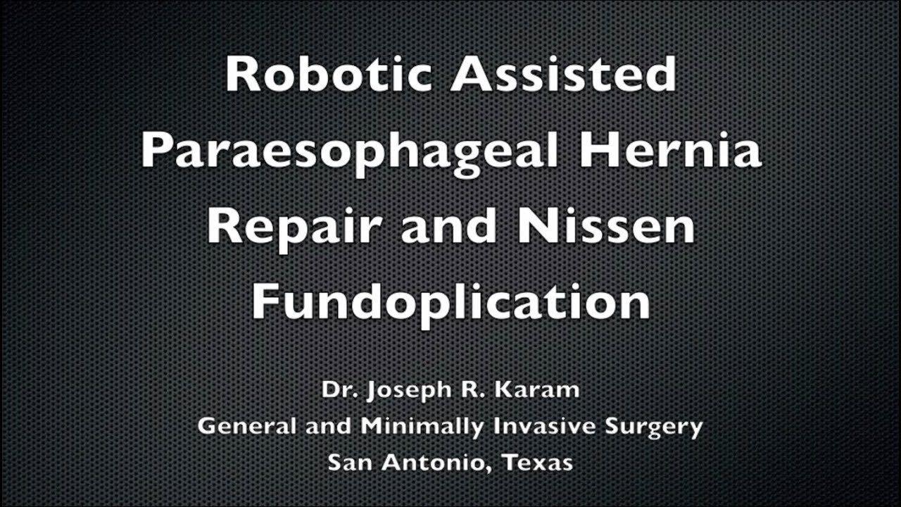 Dr  Joseph R  Karam - Robotic Paraesophageal Hernia Repair and Nissen  Fundoplication