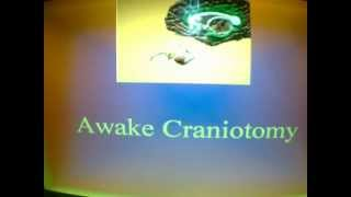 Brain tumor surgery- awake craniotomy part 1