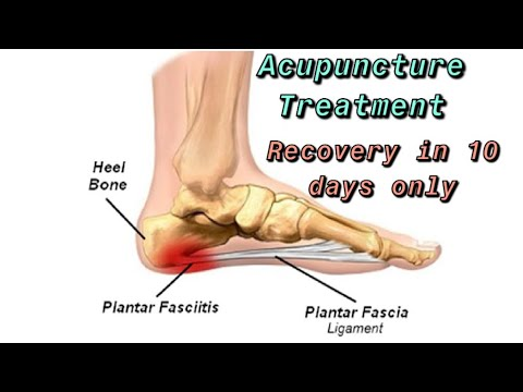 Plantar Fasciitis Treatment with Acupuncture - YouTube
