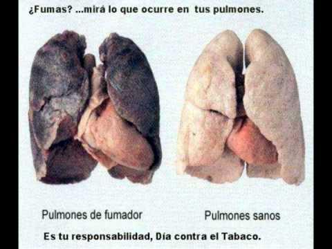 La dependencia de nicotina por mkb
