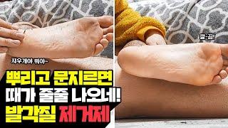 발뒤꿈치, 발바닥 각질 10초만에 제거하는 초간단 방법