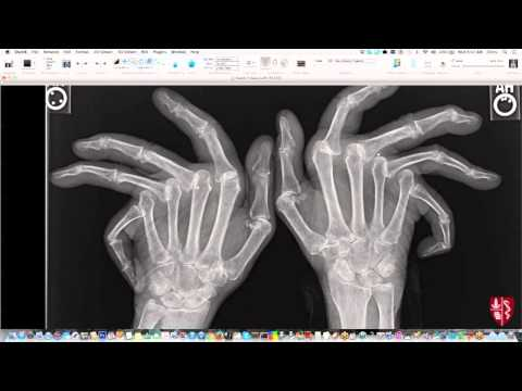 Introduction to Imaging of Arthritis thumbnail