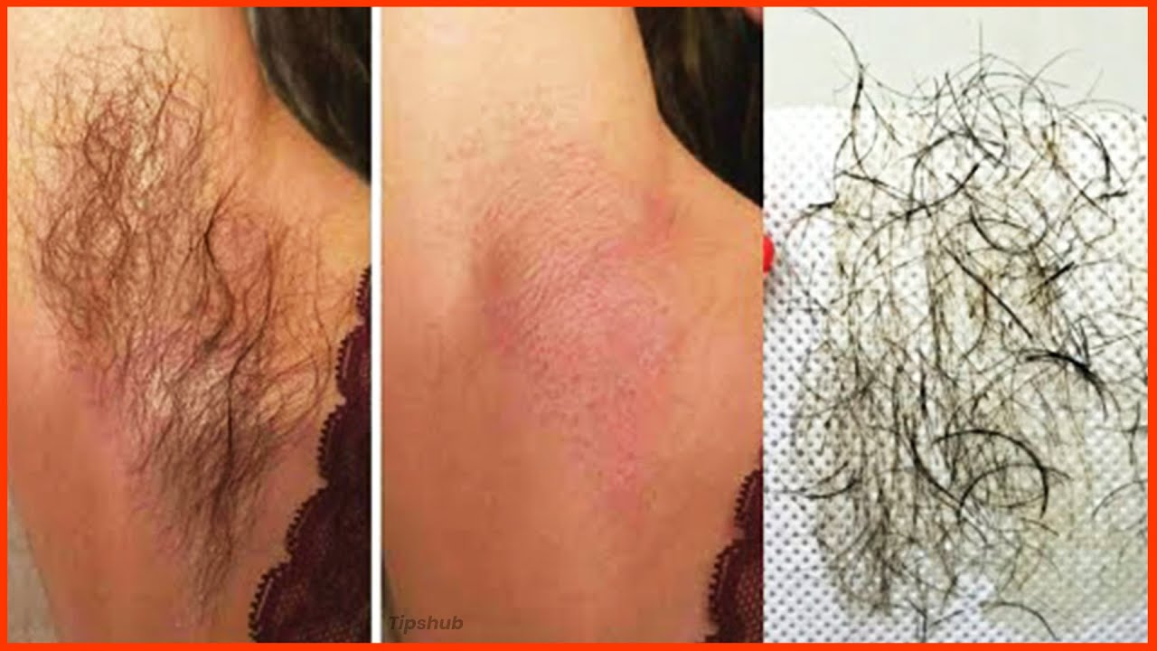 In 3 Minutes Get Rid of Pubic Hair, Body, and Underarms