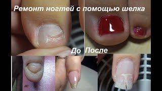 Ремонт ногтей шелком, травмы ногтей.