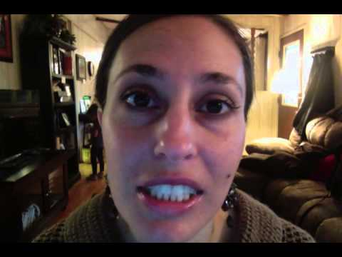 Jaw Wired Shut Video Diary Day 14 - YouTube