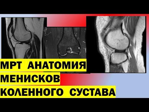 МРТ анатомия менисков коленного сустава