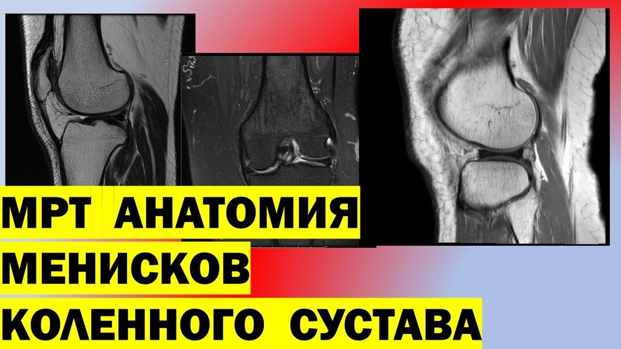 Мрт кленного сустава мениск хруст в суставах плечей