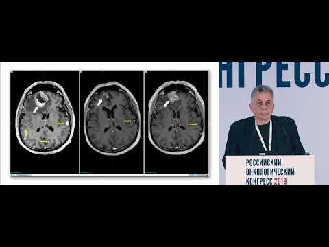 Влияние таргетной терапии на результаты радиохирургического лечения опухолей головного мозга