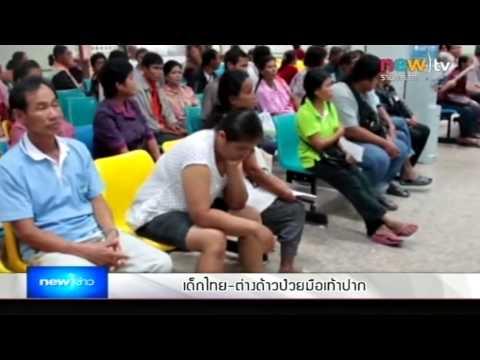 เด็กไทย-ต่างด้าวป่วยมือเท้าปากเพียบ