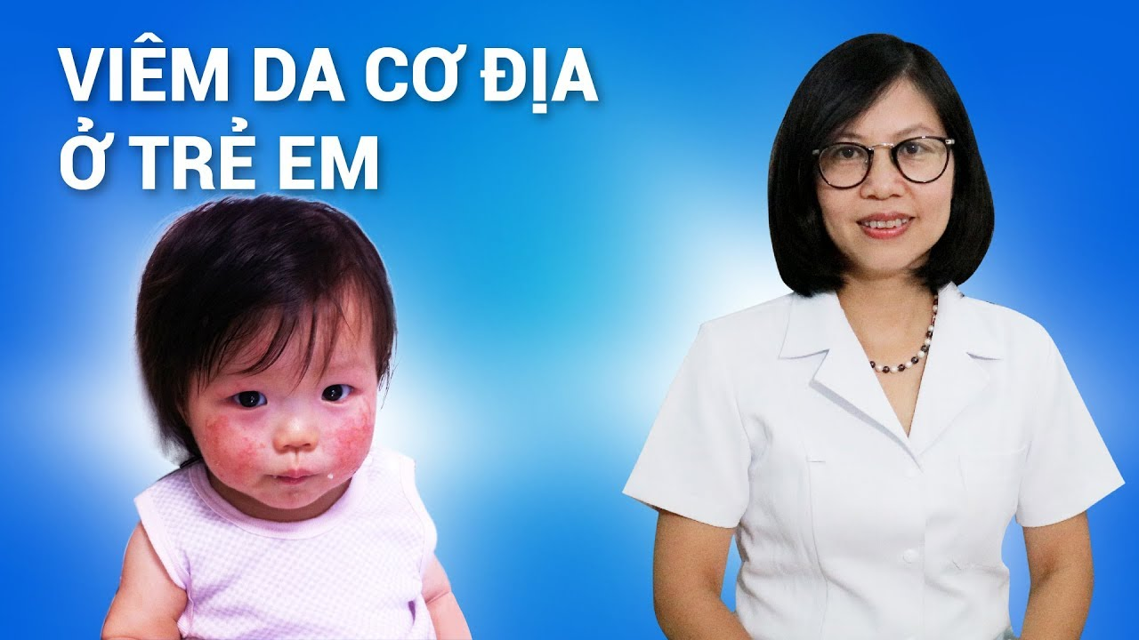 Viêm da cơ địa ở trẻ em (trẻ sơ sinh) - Biểu hiện và cách điều trị