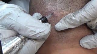Hair Transplant Scar Removal
