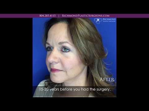 Dr. Wornom - Facelift