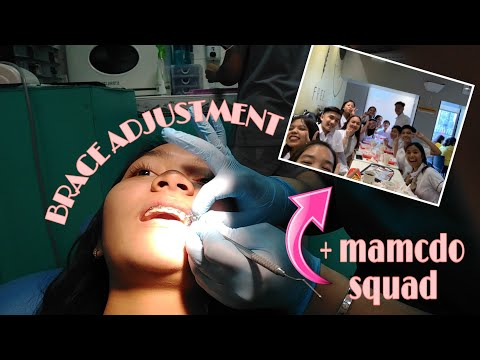 VLOG#17: Brace adjustment (Philippines) + gala with mamcdo squad lol
