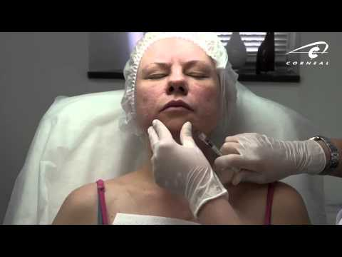 Инъекции ботокса в нижнюю часть лица, осложнения при