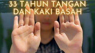 Tangan dan Kaki Berkeringat, Ini Yang Harus Anda Waspadai!.