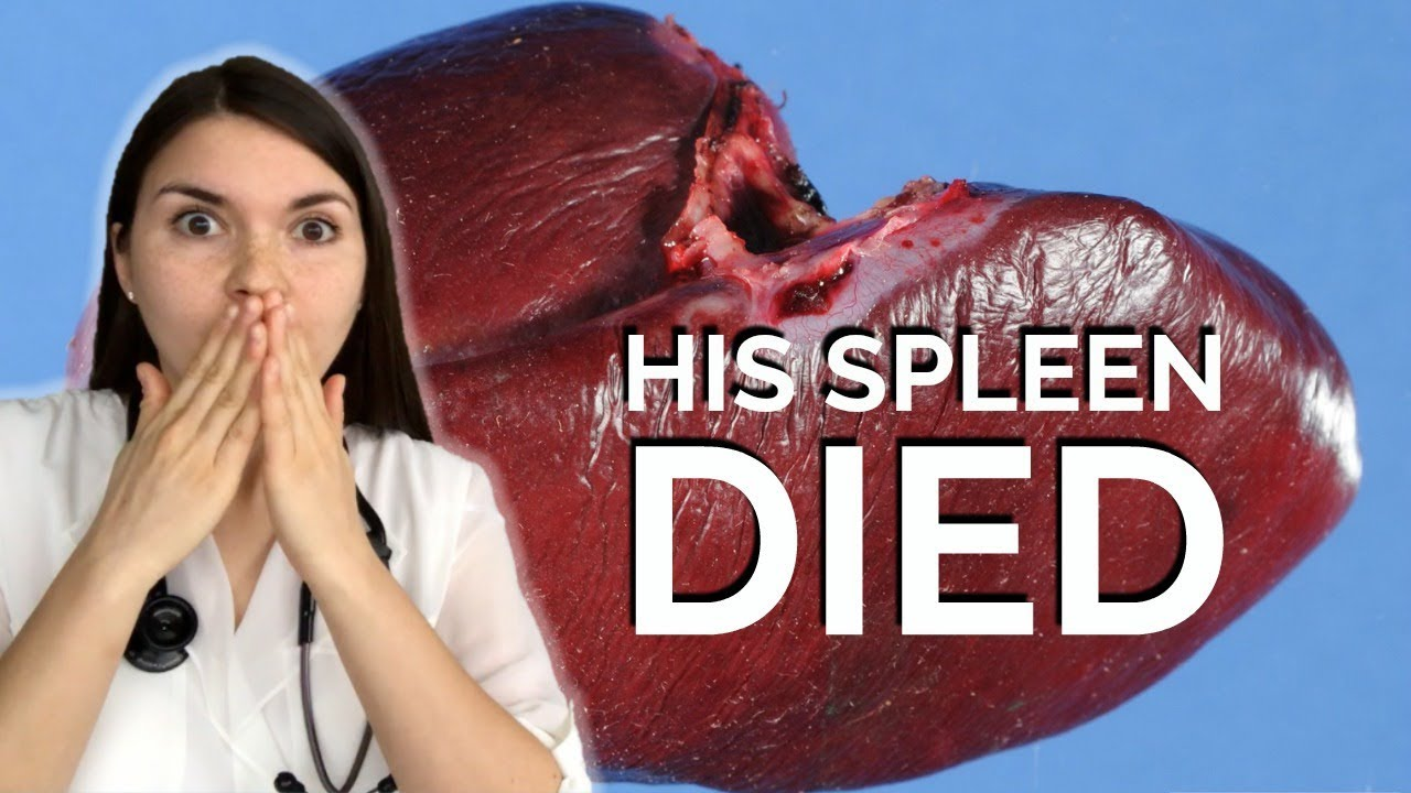 Dead Spleen After a Dentist Appointment? | Medpage Today