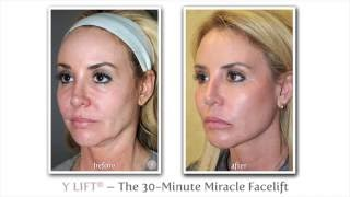Wake Up Beautiful & Refreshed | Y LIFT – Instant, Non Surgical Facelift