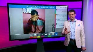 غضب في مصر بسبب فيديو اعتداء شباب على شخص ذي إعاقة ذهنية
