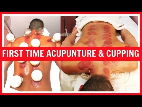 First Time Acupuncture & Cupping for Serious Neck Pain