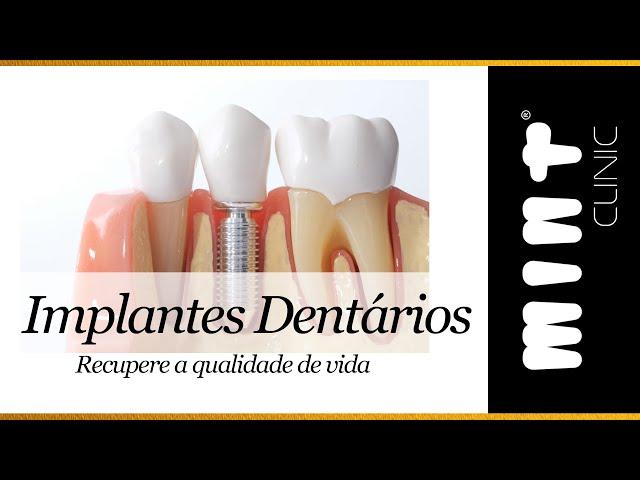 Implantes Dentários - O caminho para recuperar qualidade de vida