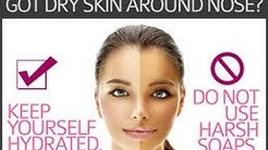 hqdefault - Dry Skin Around Mouth Acne