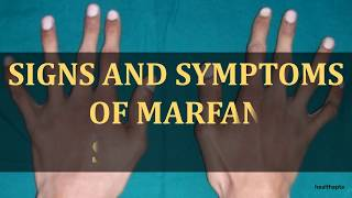 SIGNS AND SYMPTOMS OF MARFAN SYNDROME