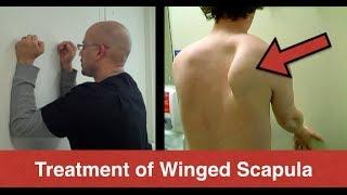 BEST Winged Scapula Exercises (Fix Scapular Winging Treatment) - Serratus Anterior Exercises