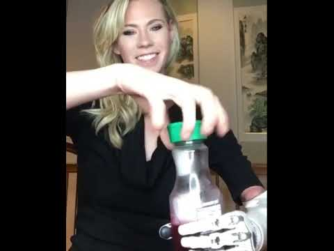Nicole Kelly attempting her new bionic arm   humorous fail