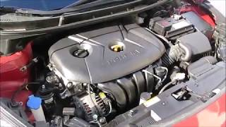 How To Fix Hyundai Elantra Engine Ticking Noise VERY EASY
