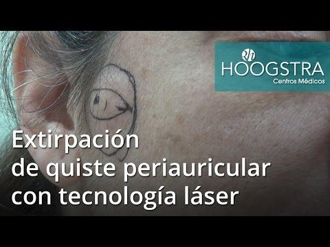 Extirpación de quiste periauricular con tecnología láser (16125)