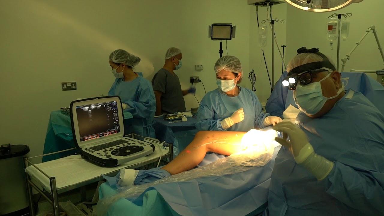 operațiunea varicoză laser)