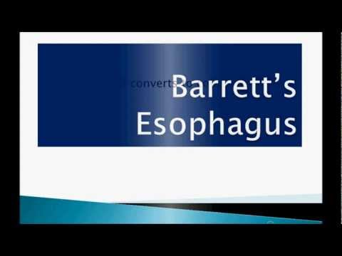 USMLE: What you need to know about Barrett's esophagus by usmleTeam