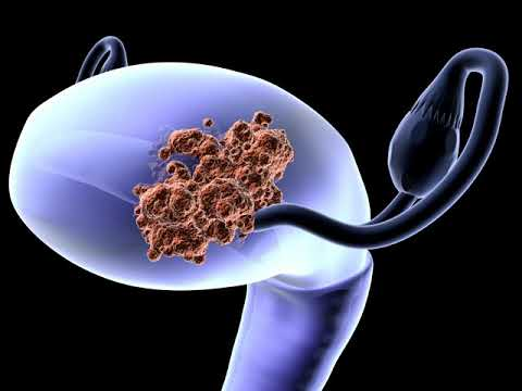 Changes To Endometrial Cancer Treatment With Daniela Matei, MD