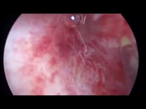 Гистероскопия, хронический эндометрит, полипоз эдндометрия звук