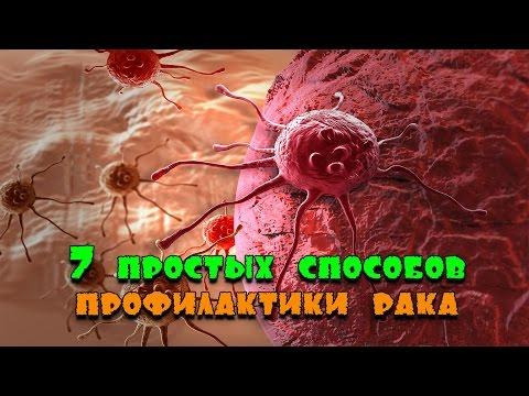 Первые признаки рака кишечника