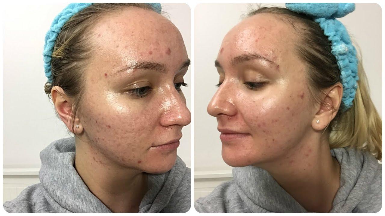 . Вы можете купить дермокосметическую мицеллярную воду sensibio h2o micelle solution. Sensibio h2o micelle solution очищение хрупкой, тонкой, чувствительной кожи,. Крем-сыворотка для возрастной кожи вокруг глаз.