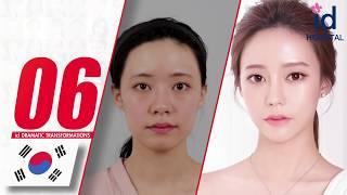 รีวิวศัลยกรรมอันดับ 10 ที่เปลี่ยนแปลงเยอะมาก! ศัลยกรรมเกาหลี