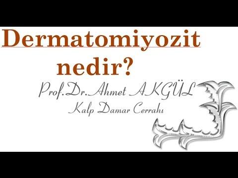 Dermatomiyozit Hastalığı  Nedir, şikayetleri Ve Tedavi Yöntemleri Nelerdir ?