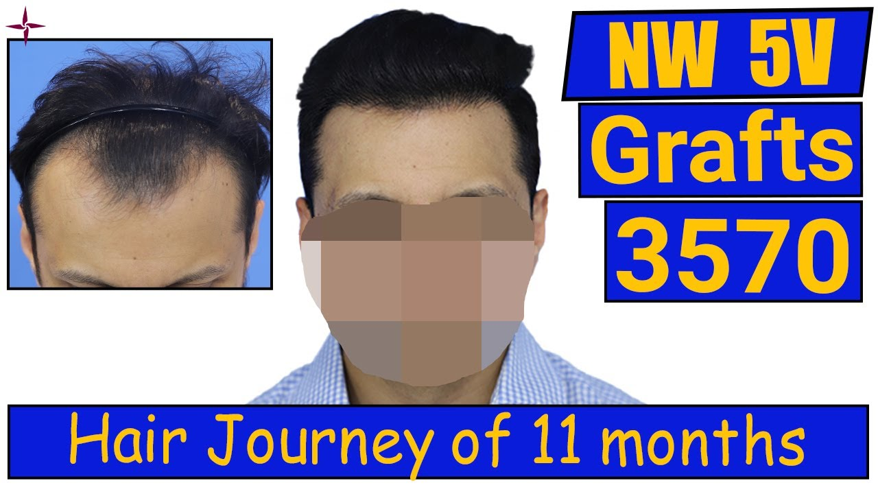 Hair Transplantation: 3570 grafts, Grade 5V @Eugenix Hair Sciences  by Drs Sethi & Bansal