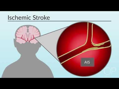"""classification-of-stroke""-by-miya-bernson-leung-for-openpediatrics"