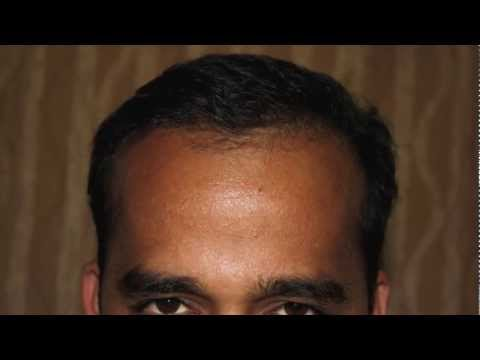hair transplant story day 1 to 8 months
